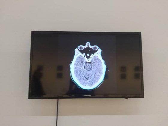 Metamorfosis' de la serie 'Cerebro' 2020 instalación dimensiones variables 2 | Rialta