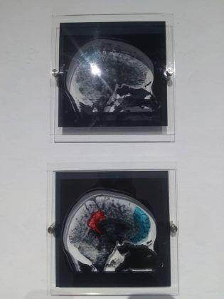 Metamorfosis' detalle de la serie 'Cerebro' 2020 instalación dimensiones variables | Rialta